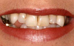 crooked-smile-crooked-teeth